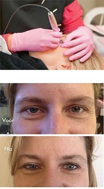 Permanente make-up met voor en na - Schoonheidssalon Emmelie